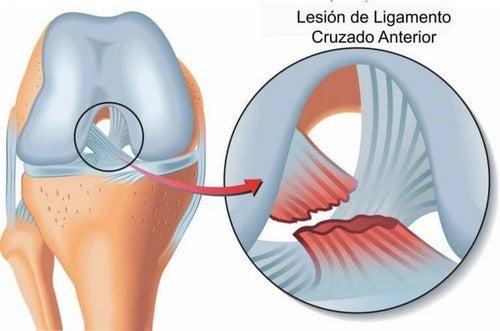Overrevet korsbånd i knæet