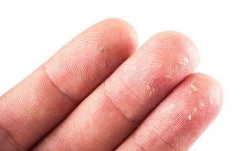 En fedtfri diæt giver tør hud