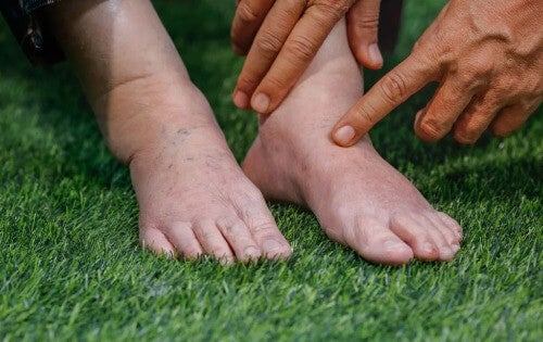 Flüssigkeitsretention in Füßen