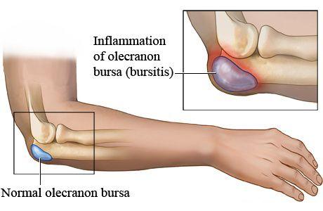 Lesion au bras