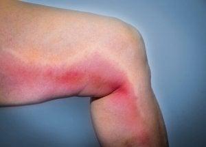 prévenir la thrombose