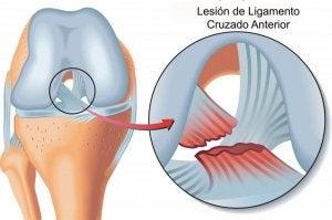Lésions des ligaments croisés.
