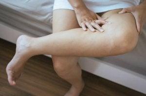Une femme avec les jambes gonflées.