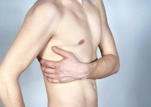 Fractures de stress des côtes à l'exercice