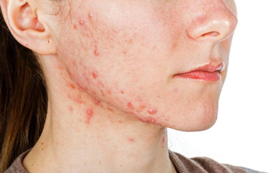 vitamina c aiuta la pelle
