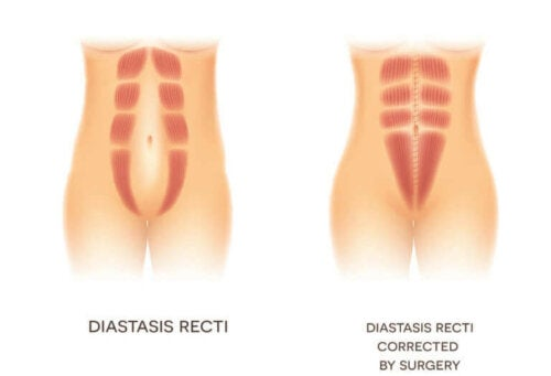 Illustrasjon av diastasis recti.