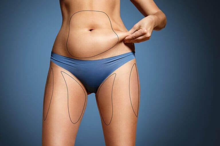 Tkanka tłuszczowa na ciele kobiety