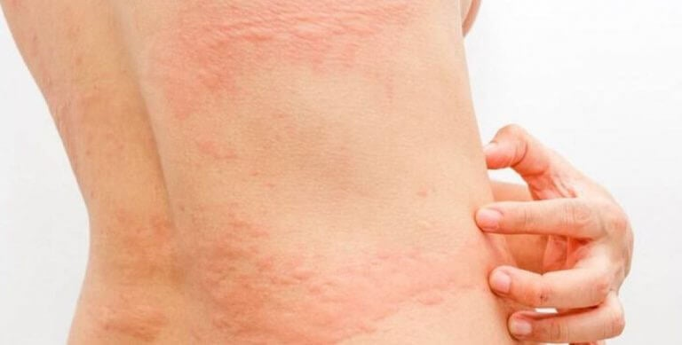 Diferentes tipos de alergias: Urticária