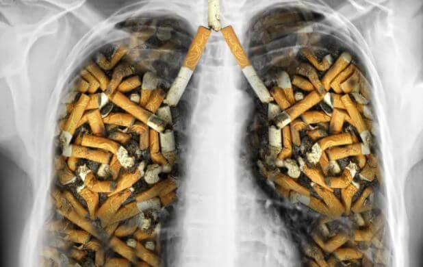 Um raio x do tórax de uma pessoa com os pulmões cheio de cigarros