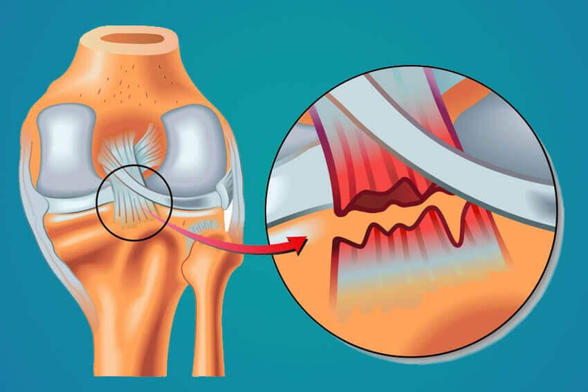 Tipos de lesões dos ligamentos do joelho.