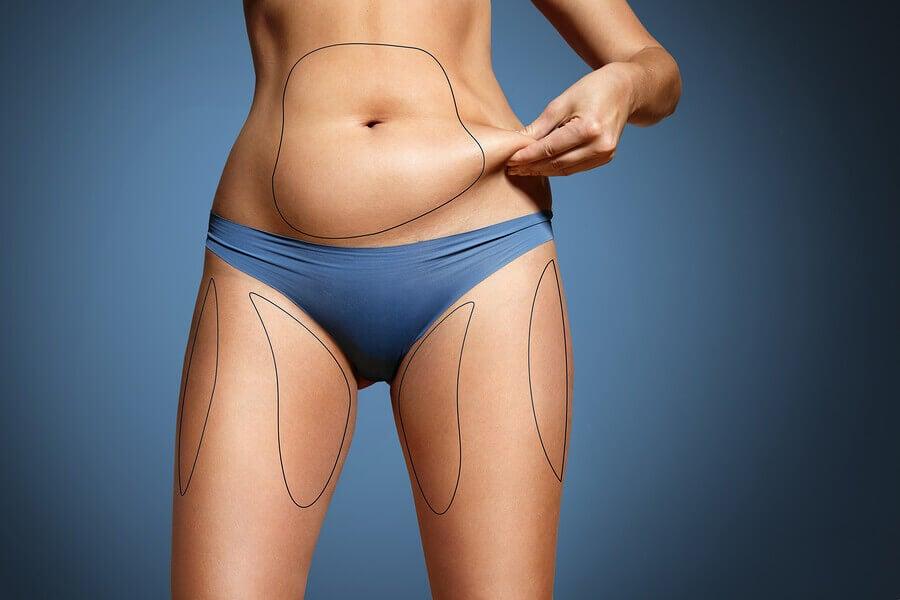 Importância do fator genético para perder gordura localizada