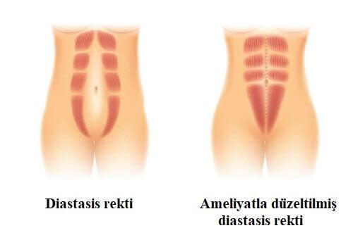 diastasis rekti
