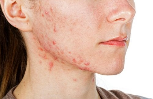 Woman's face with cystic acne