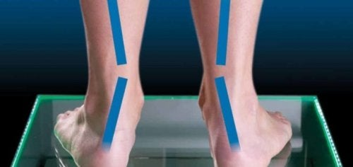 Special footwear can help fix pronation.