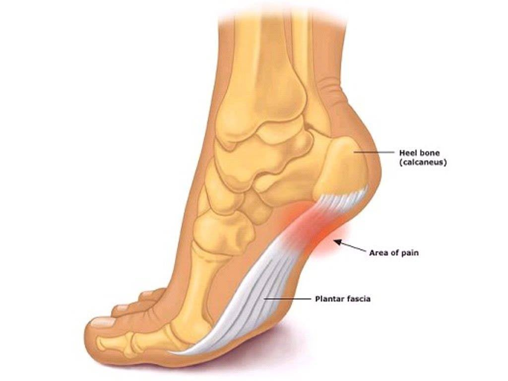 The plantar fascia is the tissue that covers the lower part of the foot.