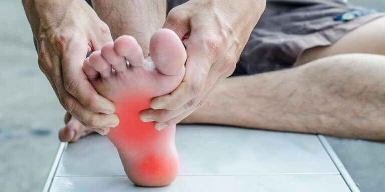 A man with symptoms of plantar fasciitis
