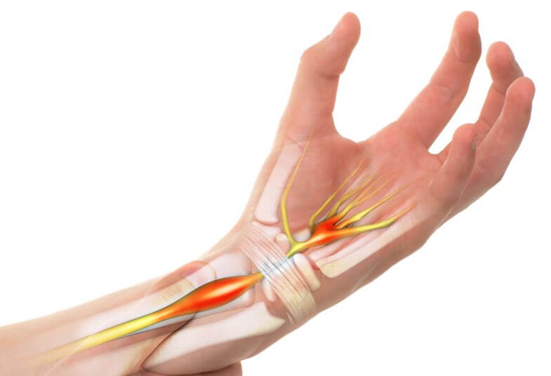 carpal tunnel syndrome wrist