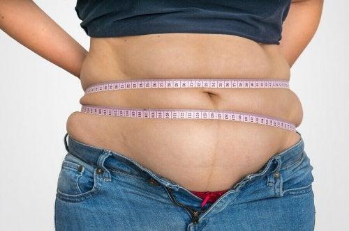 The History of Obesity: A Short Summary