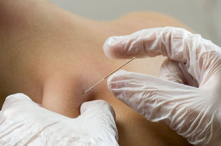 Inserting an acupuncture needle in the back of a patient