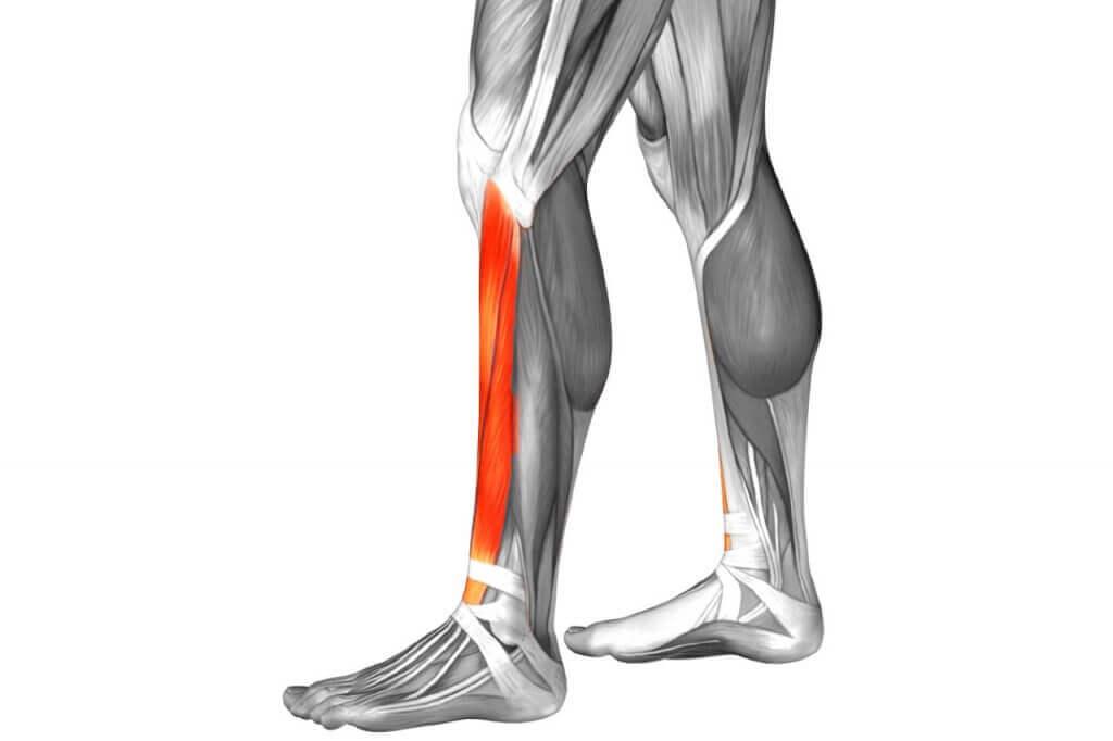 A diagram highlighting shin splints.