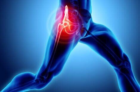Hip pain: Trochanteric bursitis.
