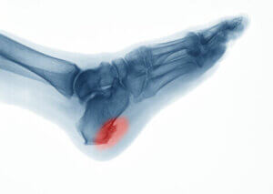An x-ray of heel spurs.