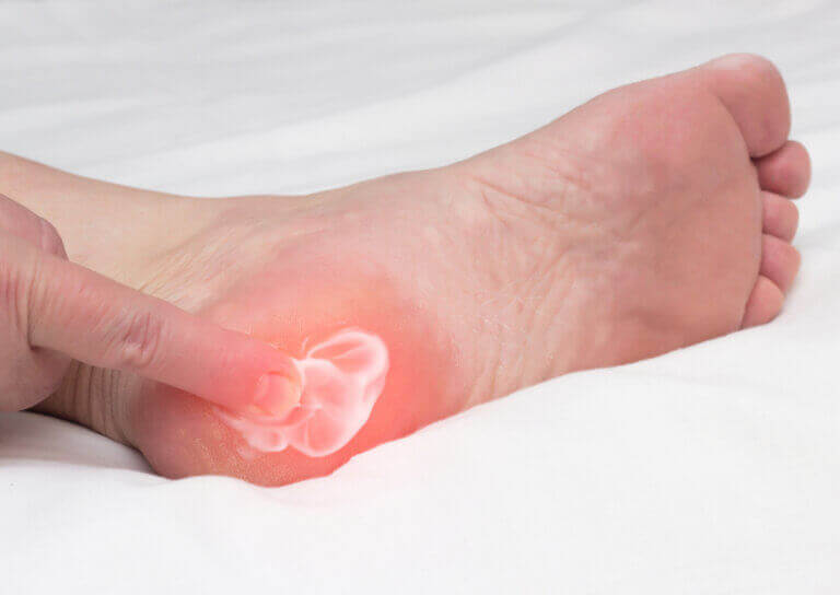 Foot Pain Caused by Heel Spurs